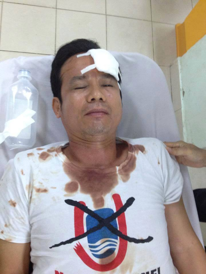 Bloger Trần Bang ở bệnh viện 115, đường Sư Vạn Hạnh, Quận 10, Sài Gòn. Ảnh: Facebook ngày 05/11/2015