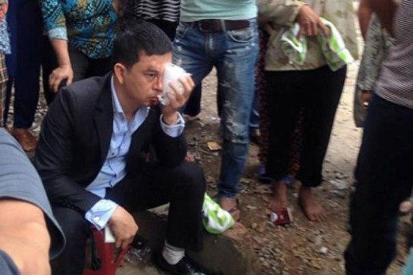 Luật sư Trần Thu Nam hôm bị côn đồ tấn công.Courtesy photo