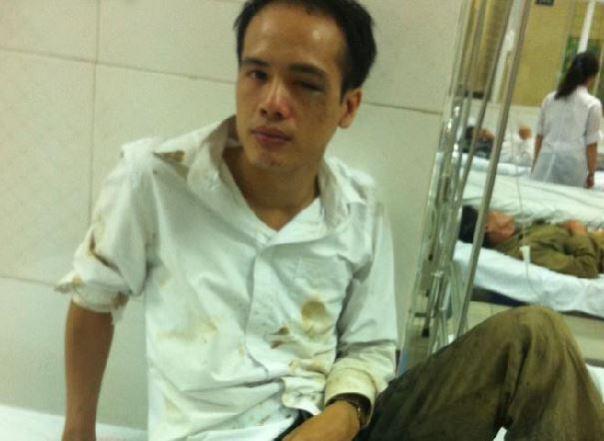 Luật Sư Lê Văn Luân sau khi bị tấn công.