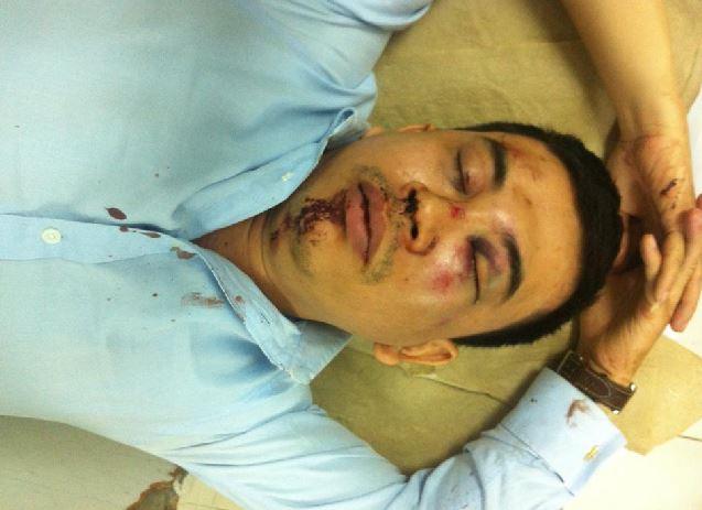 Luật sư Trần Thu Nam sau khi bị tấn công.