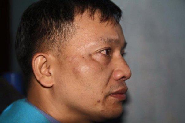 Khuôn mặt luật sư Đài bị sưng to sau khi bị hành hung. Ảnh FB Dũng Nguyễn Quân.