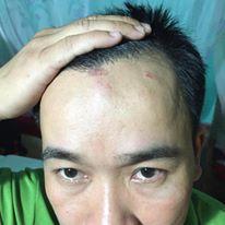 Nguyễn Đình Cương bị sưng đầu sau khi bị công an đánh đập