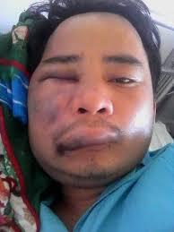 Kỹ sư - blogger Nguyễn Văn Thạnh lại bị hành hung hôm chủ nhật 05/06 tại Đà Nẵng