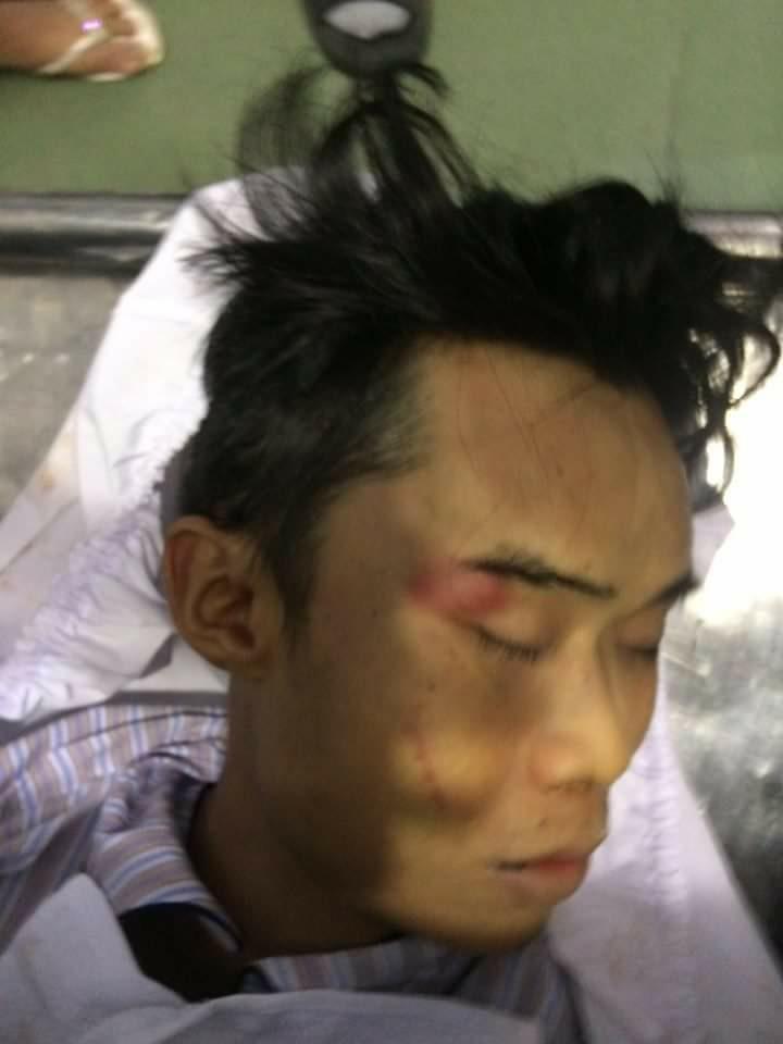 (Hình nạn nhân Phạm Ngọc Nhung đã chết tại bệnh viện)