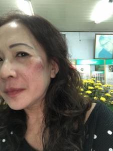 Cô Nguyễn Lai sau khi bị công an nhà nước Khánh Hòa hành hung.