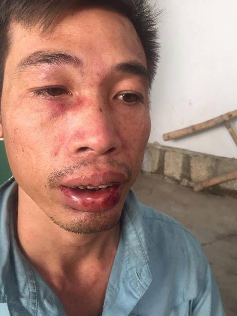 """Anh Nguyễn Tăng Lượng với vết thương trên mặt sau trận hành hung (Ảnh"""" Facebook Cộng Hòa Thời Báo)"""