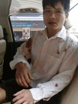 Mr. Ton after being kidnapped, tortured and robbed by plainclothes agents in Quang Binh-Ha Tinh on Feb 27