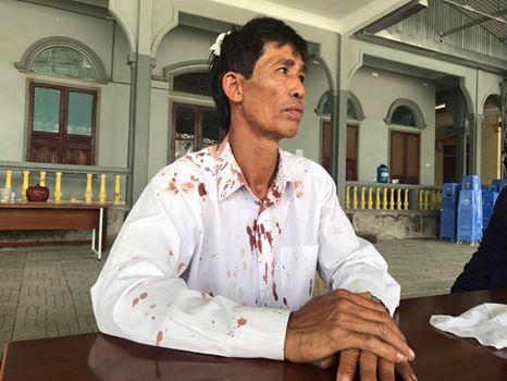 Ông Nguyễn Văn Khanh, giáo xứ Phú Yên vì đi cứu em Nguyễn Thị Trà bị công an bắt mà bị đánh đập