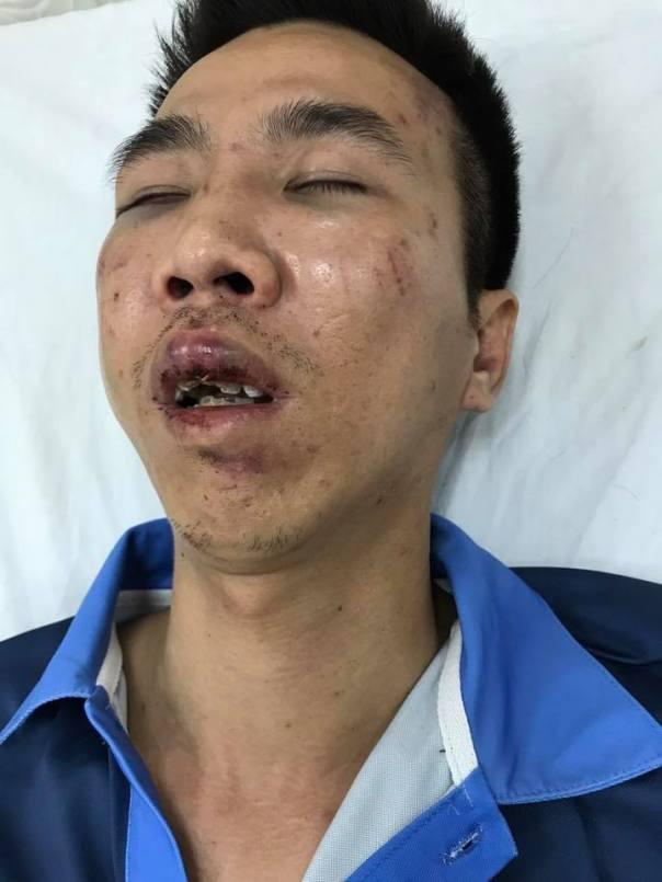 Phạm Thái Dương- người ủng hộ Phan Hùng đánh phụ nữ Mỹ Hạnh