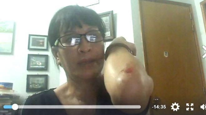 Vết thương của chị Sương Quỳnh do bị công an côn đồ hành hung